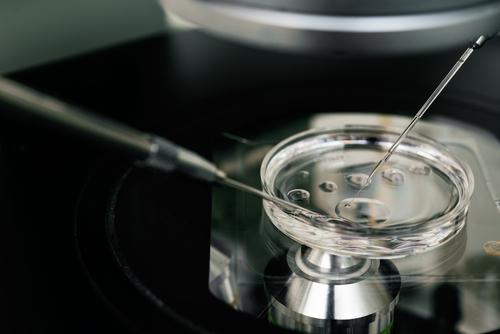 胚盤胞移植 培養期間