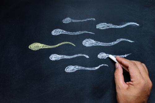男性不妊 精子