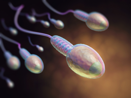 男性不妊 造精機能障害